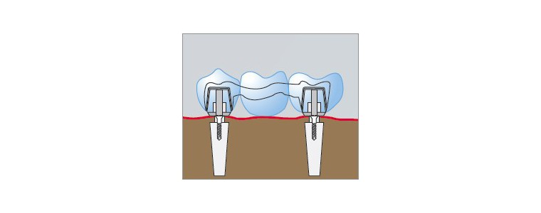 Fraisage oxyde de zirconium