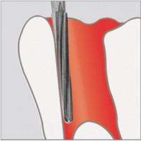 Fraises pour endodontie