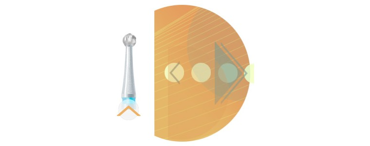 C1SX - denture croisée