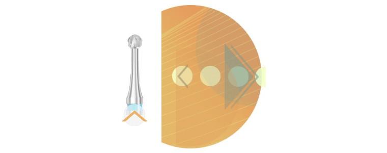C1SXN - denture croisée / col fin