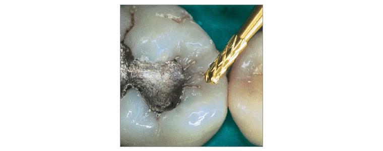 amalgam removers